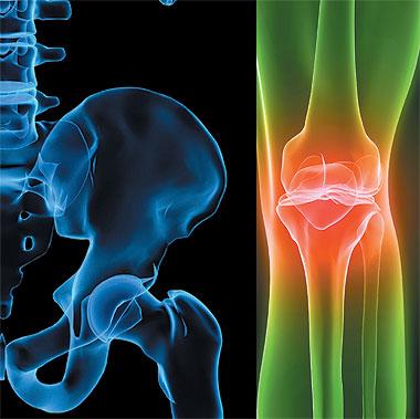 علاج هشاشة العظام