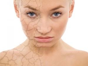 عادات سيئة يمكن أن تدمر بشرتك